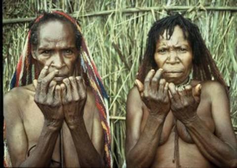 Tục chặt ngón tay của người Dani