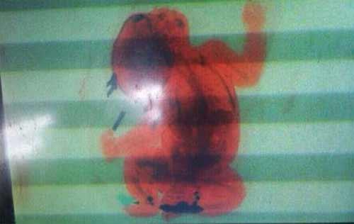 Mẹ giấu con 2 tháng tuổi trong hành lý xách tay