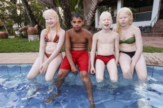 Bố mẹ da đen đẻ ra 3 con da trắng, tóc vàng và mắt xanh